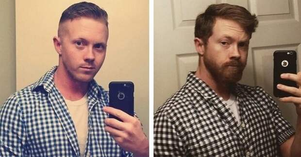 beards25