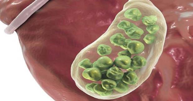 Симптомы желчных камней и как они возникают, факторы риска и лечение