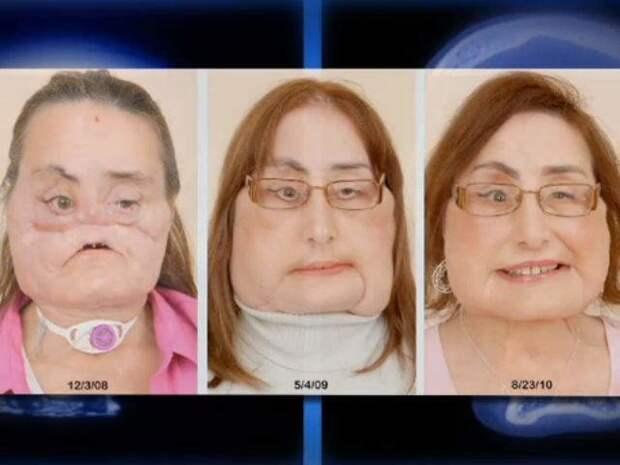 В 2008 году первая частичная трансплантация лица в США была проведена Конни Калп  история, пересадка, результат