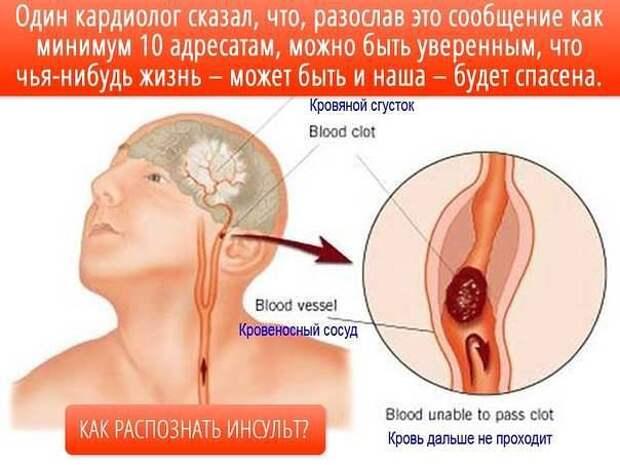 Распознавание симптомов инсульта
