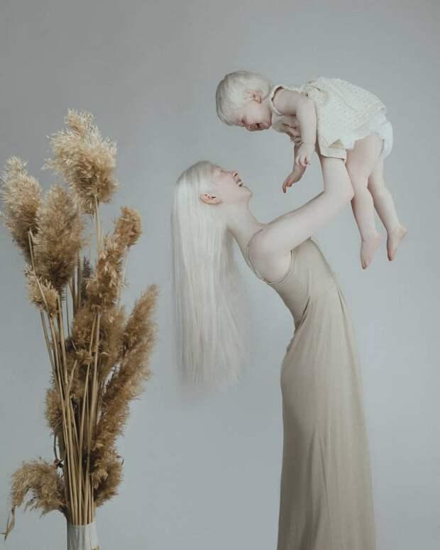 Сестры-альбиносы из Казахстана завоевывают модельный мир