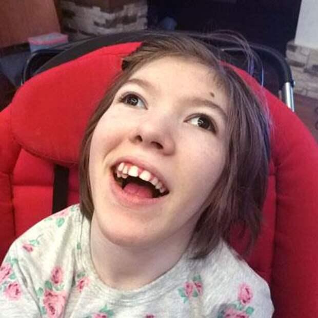 Мила Степанова, 16 лет, детский церебральный паралич, требуется курсовое лечение, 24770₽