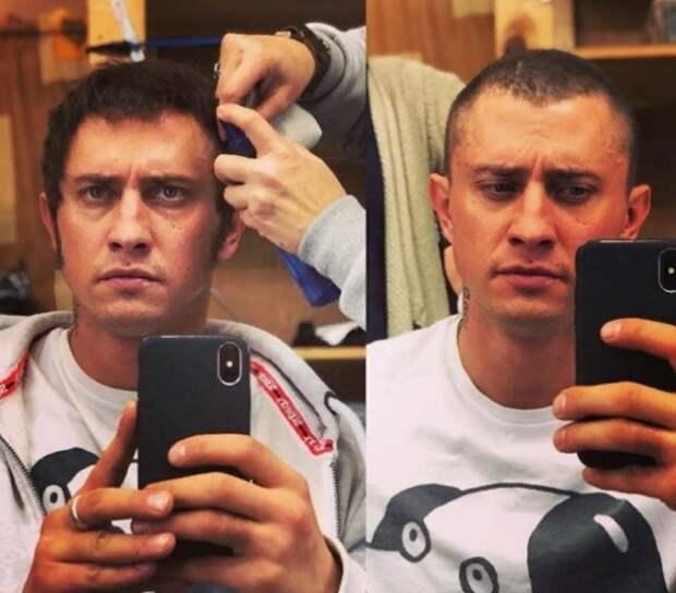 Фанаты глумятся на снимками Павла Прилучного до пластики ушей и после