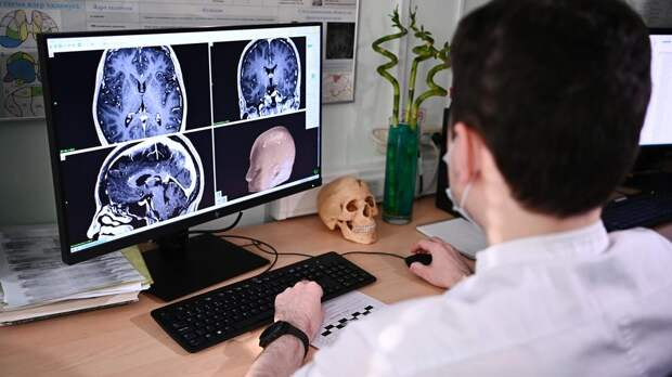 Врачи рассказали, когда головная боль является симптомом рака
