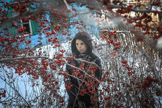 История Ани Болдыревой, которая лишилась лица из-за пожара, но надеется на лучшую жизнь