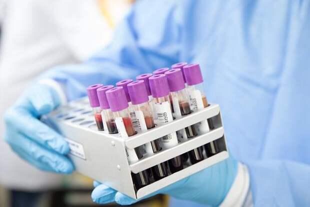 На Украине за сутки выявили более 2,2 тысячи случаев заражения COVID-19