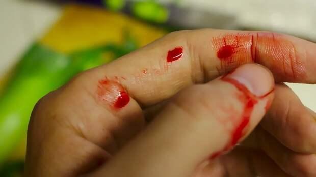 Кровотечение из носа может указывать на серьезные болезни