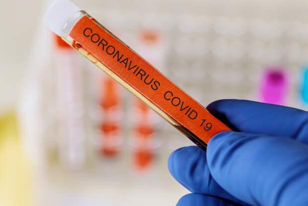 В Удмуртии за сутки выявили 53 новых случая заболевания коронавирусом