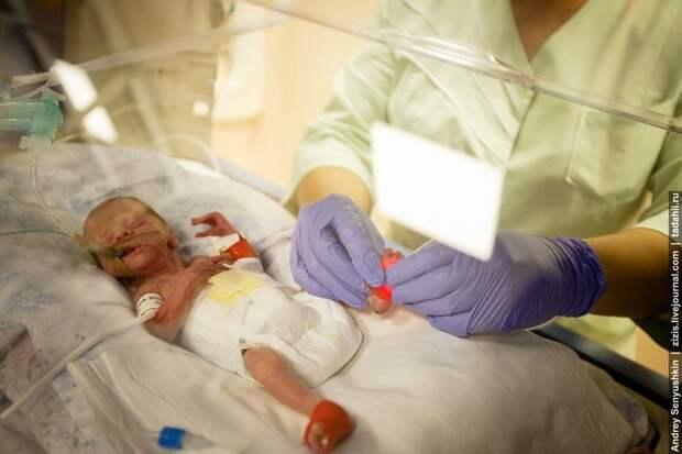Как спасают новорожденных. Репортаж из детской реанимации