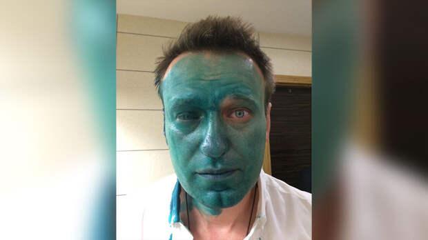 Алексея Навального облили зелёнкой в Москве