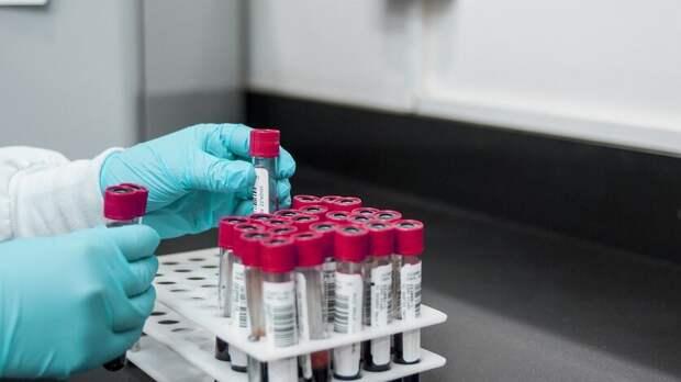 Число новых ВИЧ-инфицированных сократилось вРостове почти натреть