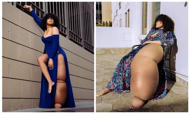 «Отрежь себе ногу!»: как американка с 45-килограммовой конечностью научилась любить себя